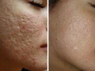 Как убрать шрамы на лице?