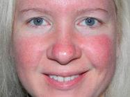 Красное лицо — причины и лечение