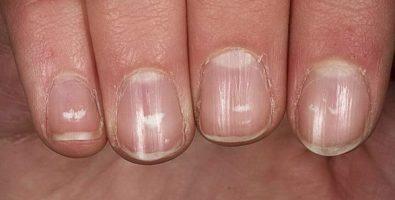 Белые точки на ногтях: о чем говорят эти знаки и что предпринять для их лечения?