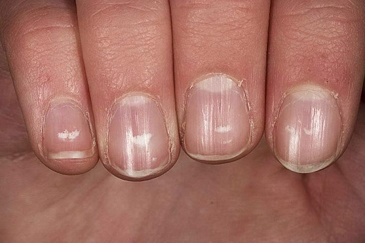 Белые пятна на ногтях рук что значат