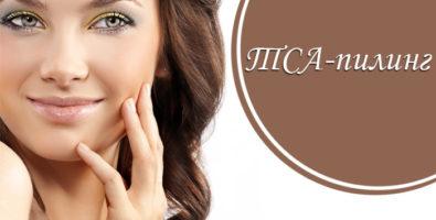 TCA пилинг, почему стоит попробовать? Преимущества и недостатки