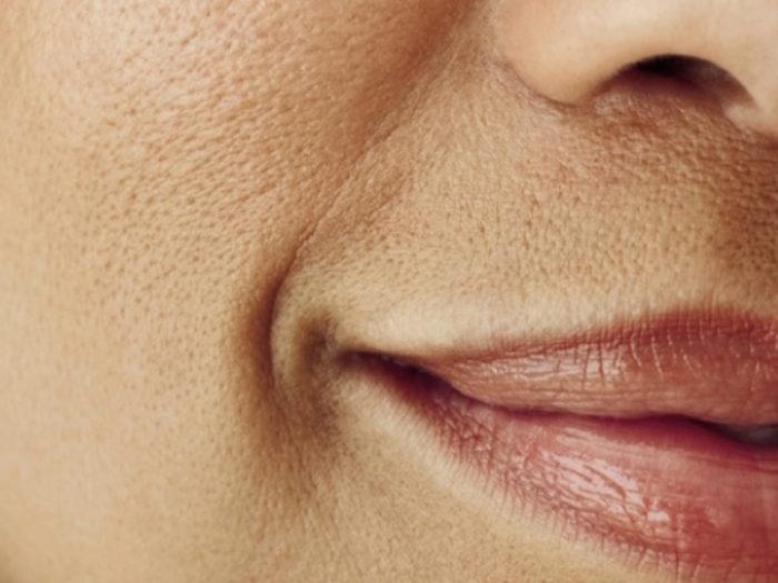 Пористое лицо - причины, лечение, рецепты масок для пористого лица
