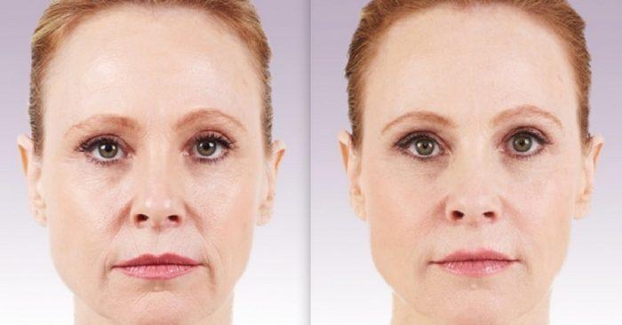 Липофилинг лица (носогубных складок): тонкости процедуры, показания и противопоказания