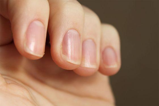 почему ногти становятся ребристыми?