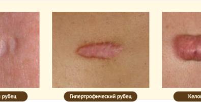Эффективные методы лечения атрофических рубцов: традиционные и народные