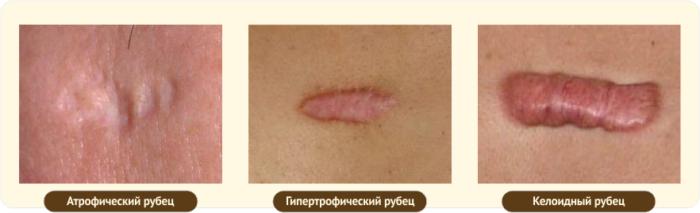 atroficheskie-rubtsy