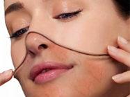 Обзор свойств кремов от купероза на лице