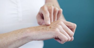 Как вывести пигментные пятна на руках с помощью домашних рецептов?