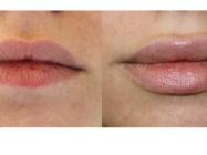 Все об увеличении губ гиалуроновой кислотой: процедура, стоимость, противопоказания, восстановление