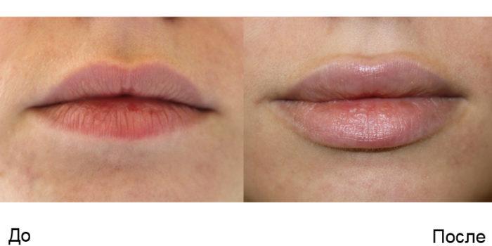 До и после увеличения губ гиалуроновой кислотой, фото
