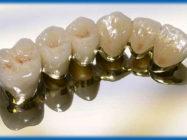 Уход за металлокерамическими зубами. Уход за зубами из металлокерамики