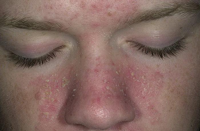 себорея на лице, фото