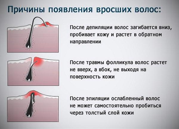 Мазь для удаления волос