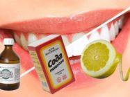 Как сделать свои зубы белыми: простые способы отбелить зубы