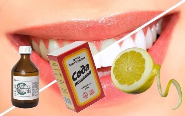 Отбеливаем зубы в домашних условиях перекисью и содой
