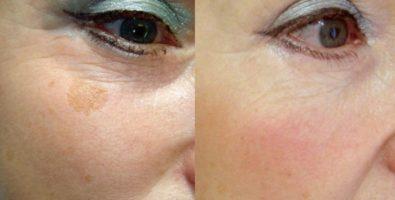 Салонные процедуры для лица: уникальность мезопилинга