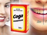 Перекись водорода и сода – верные помощники в борьбе за белизну зубов! Отбеливание зубов содой и перекисью в домашних условиях