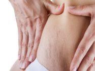 Растяжки на коже — причины, лечение и меры профилактики