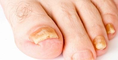 Утолщение ногтей на ногах – ваш организм в опасности!