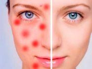 Воспаление кожи — методики и средства лечения
