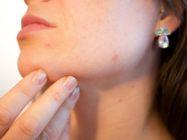 Гнойные прыщи на лице – причины появления и способы лечения, рекомендации по профилактике