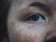 Причины пигментации на лице и способы от нее избавиться