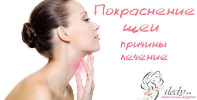 Возможные причины покраснения шеи и лечение раздражения
