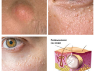 Жировики на лице — причины и эффективные способы лечения